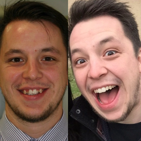 Invisalign before after D.png