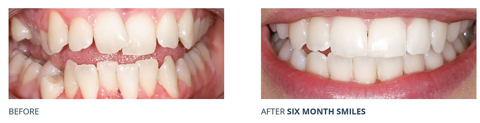 Before & After Crowded Teeth