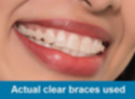 6 Month Braces - College Street Dental