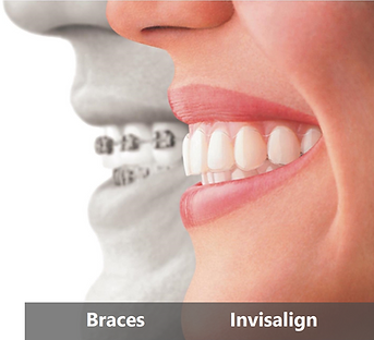 Braces and Invisalign - College Street Dental
