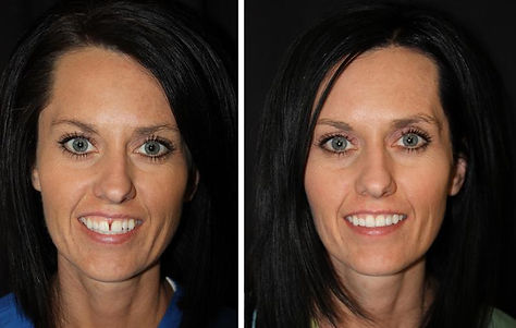 Before After Six Month Smiles