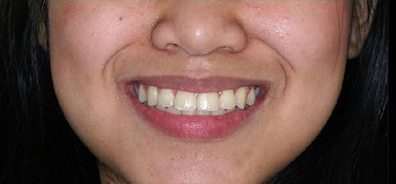 After Six Month Smiles
