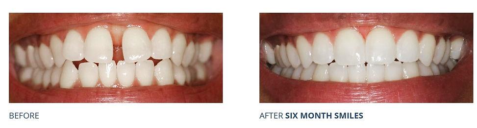 Before & After Gap Spacing Teeth