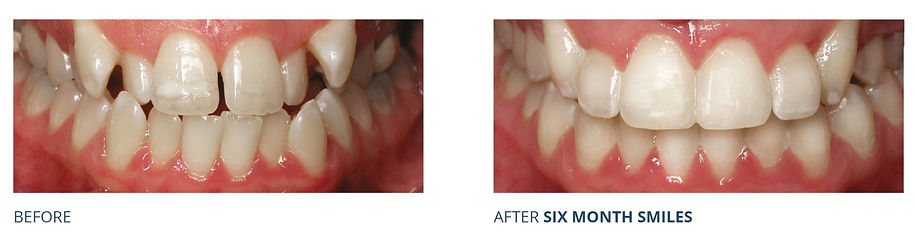 Before & After High Canine Crooked Teeth