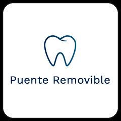 Puente-Removible-Dentista-En-Tijuana-Zona-Rio-Dental-California.png