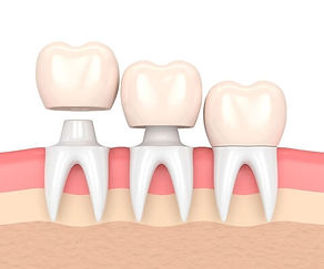 Coronas-Dentales-Dentista-En-Tijuana-Dental-California.jpg