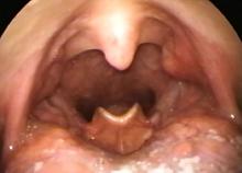 cancer oropharynx