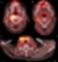 Tep-TDM d'une adénopathie cervicale
