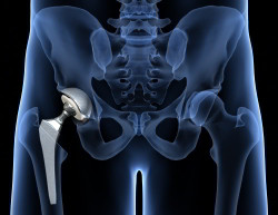 Οστεοαρθρίτιδα ισχίου - Ολική αρθροπλαστική MIS