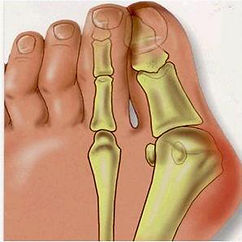 1Pair-Bunion-Orthotics-Toe-Separator-Ect