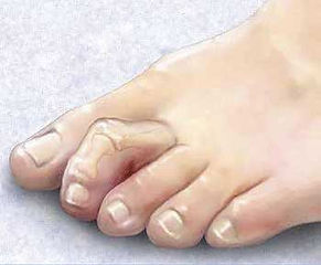 hammer-toe-treatment-manhattan1.jpg