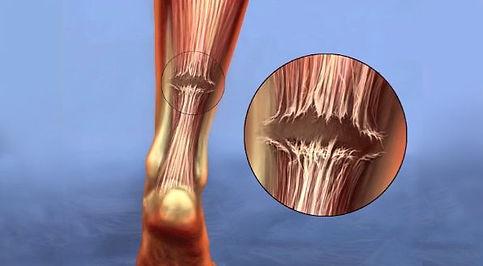 achilles-tendon-rupture-feature-compress