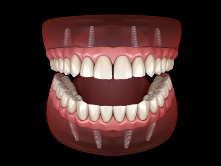 Dental Implant Dentist In Twickenham TW2 - Replace Missing Teeth With Confidence
