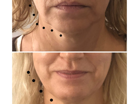 Facial Aesthetics - Free Video Consultation