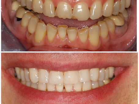 Transform Your Smile With Cosmetic Dentistry!