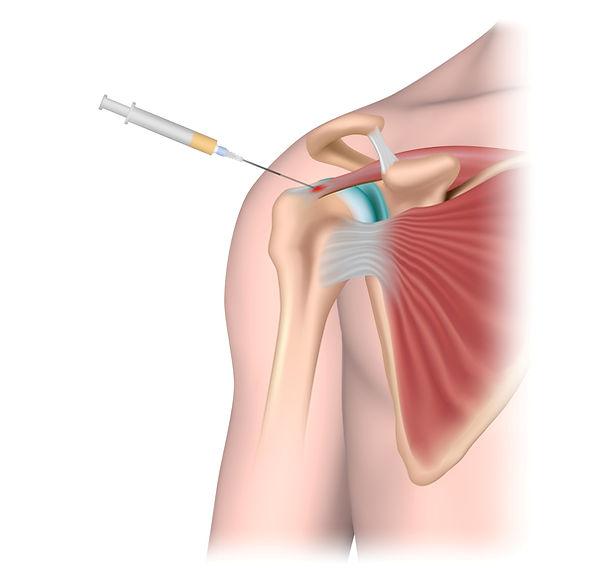 shoulder injection.jpg