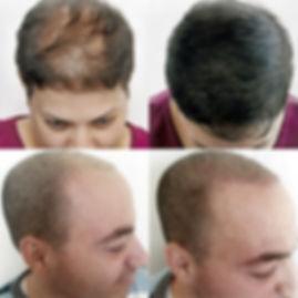 Dermo-pigmentation pour perte de cheveux