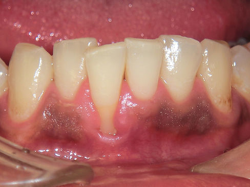 歯肉退縮-術前2