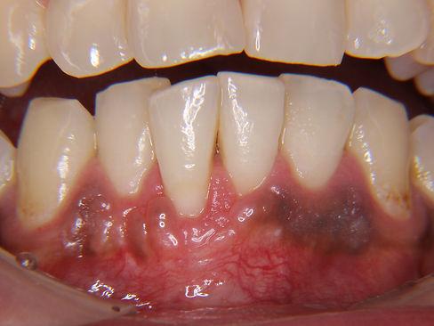 歯肉退縮-術後1
