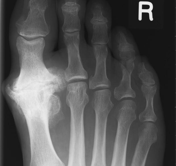 Arthrose ou arthrite? - Hallux limitus - Hallux Rigidus - Osteoarthrite de la première articulation métatarso-phalangienne