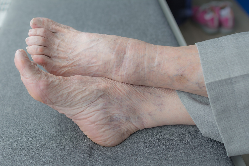 Les pieds des aînés : Comment en prendre soins - podiatrie - podologie - âge d'or - personnes âgées - douleur aux pieds