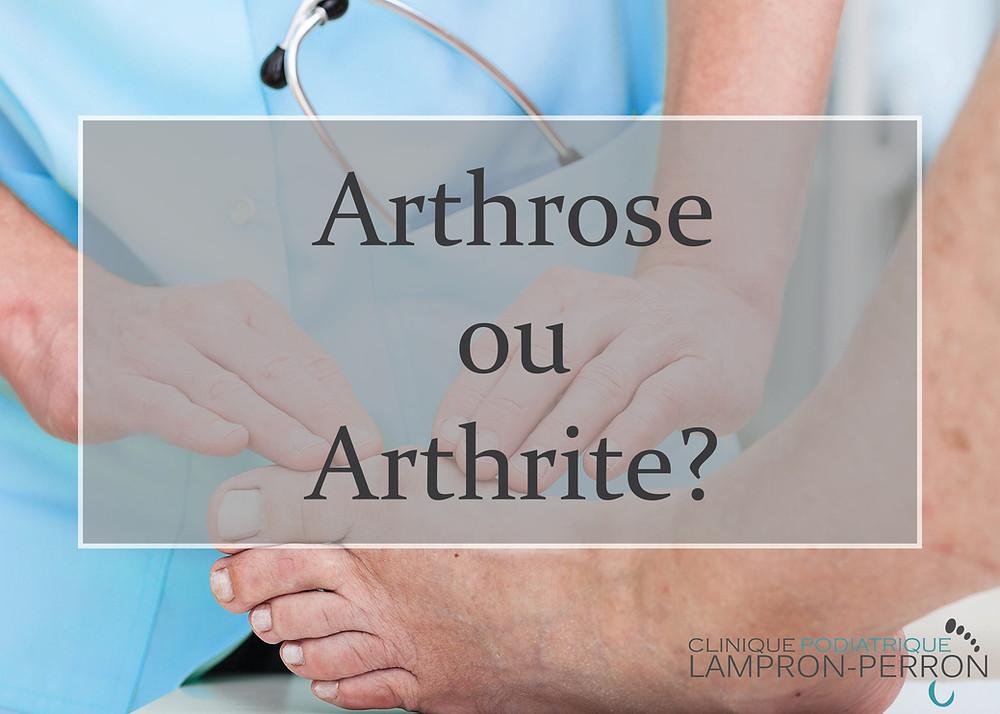 Arthrose ou arthrite? Quelles sont les différences et comment affectent-elles le pied?