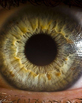 iris-anneaux-et-spasme.jpg