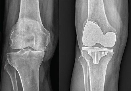 knee.jpg
