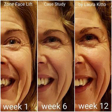 Zone Face Lift at LMK