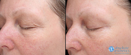 EDS Revitalise Treatment before & after