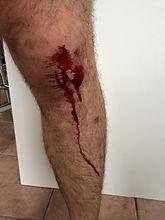 blood knee no permission.jpg