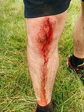 bloody knee 2.jpg