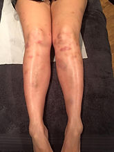 brusied knee 4.jpg