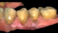 Abrasione Dentale