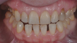 Preparazione dentale minimale