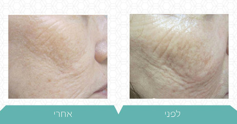 טיפול Forma למיצוק העור
