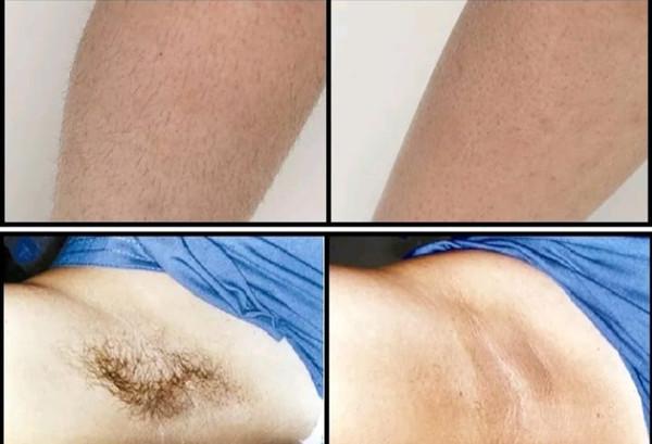 הסרת שיער במכשיר OPTIMAS
