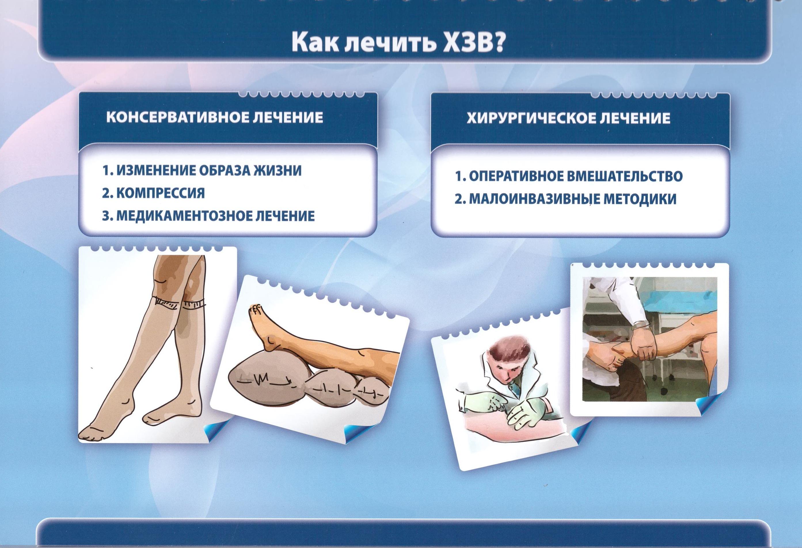 ВРВ_лечение