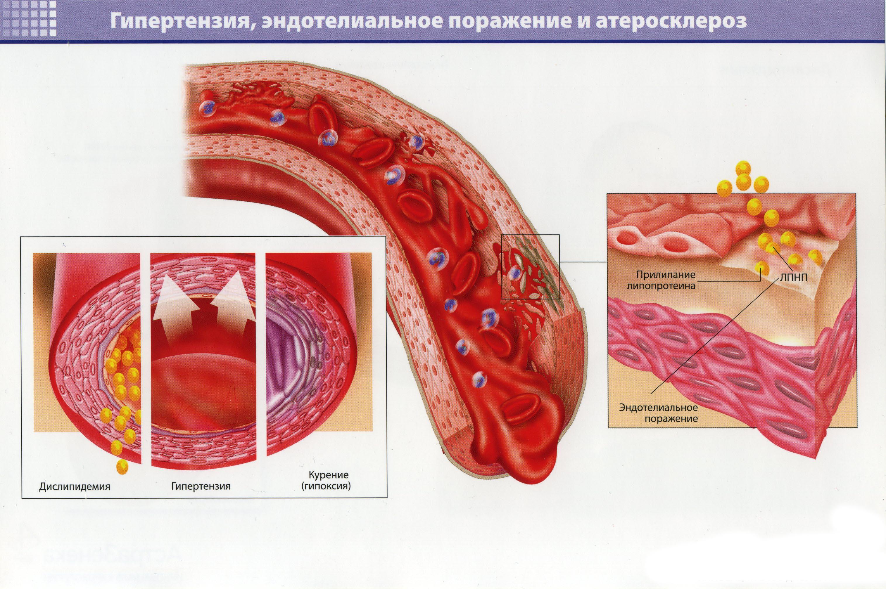 Гипертензия, эндотелиальное поражение и атеросклероз