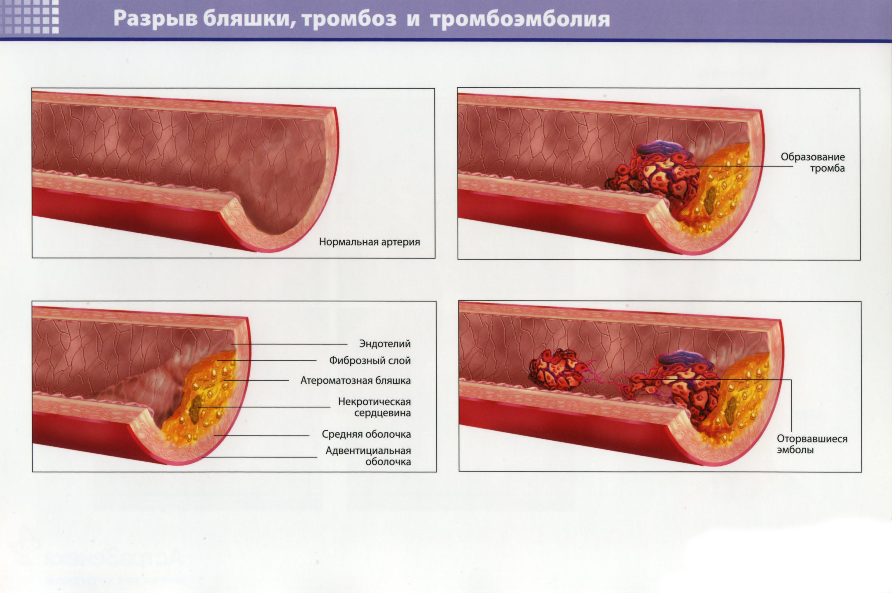 Разрыв бляшки, тромбоз и тромбэмболия