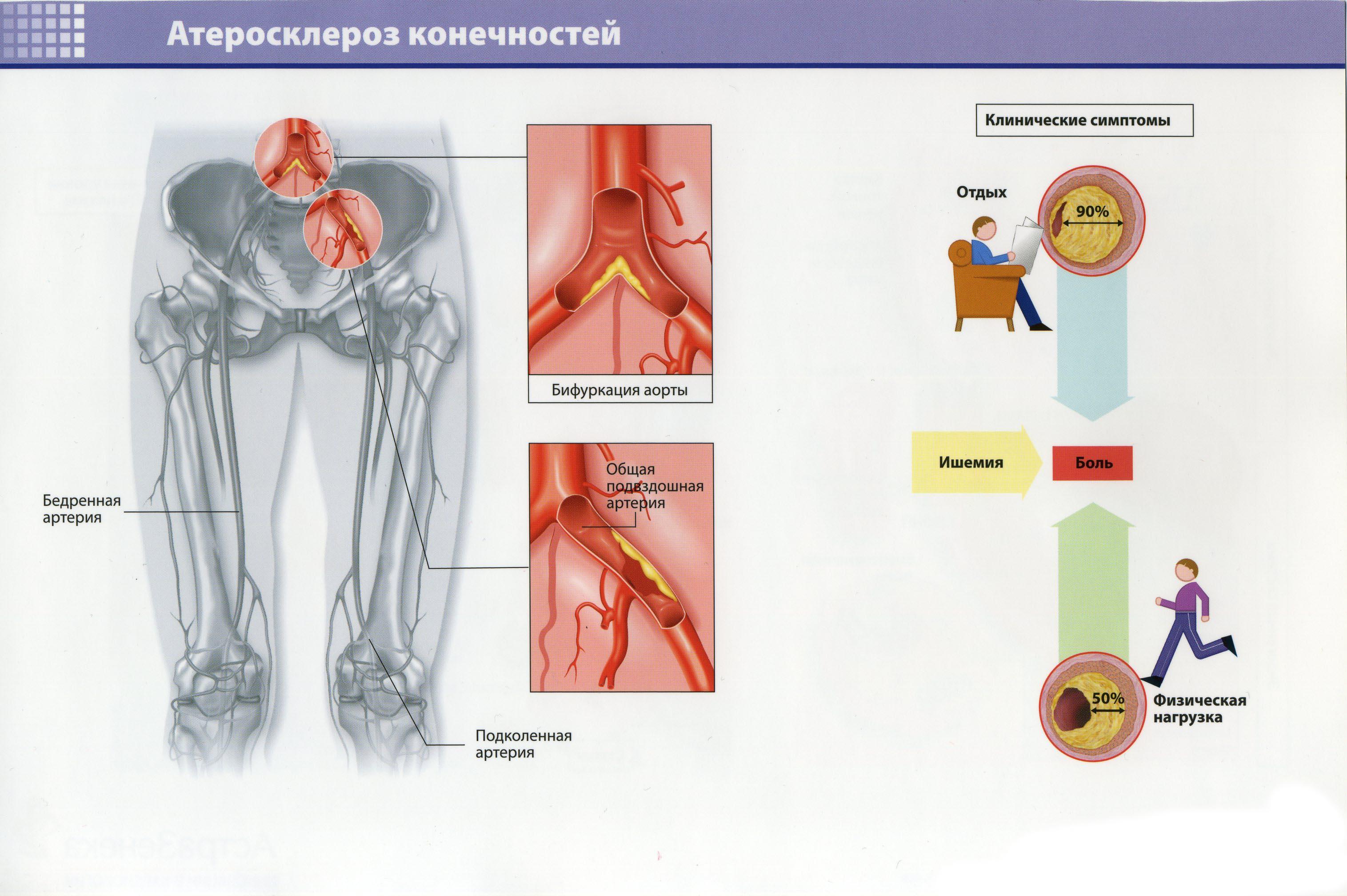 Атеросклероз конечностей