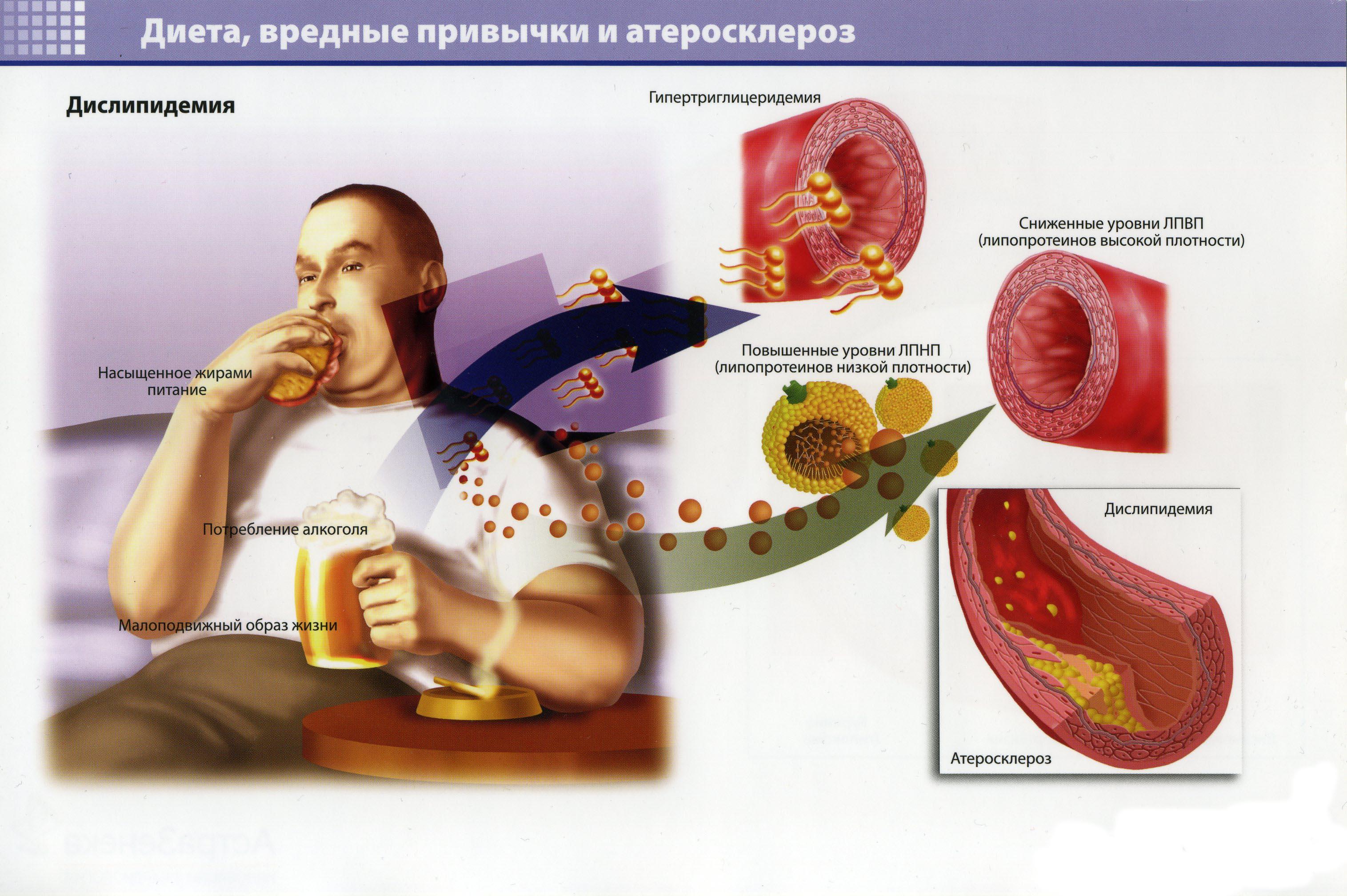 Диета, вредные привычки и атеросклероз