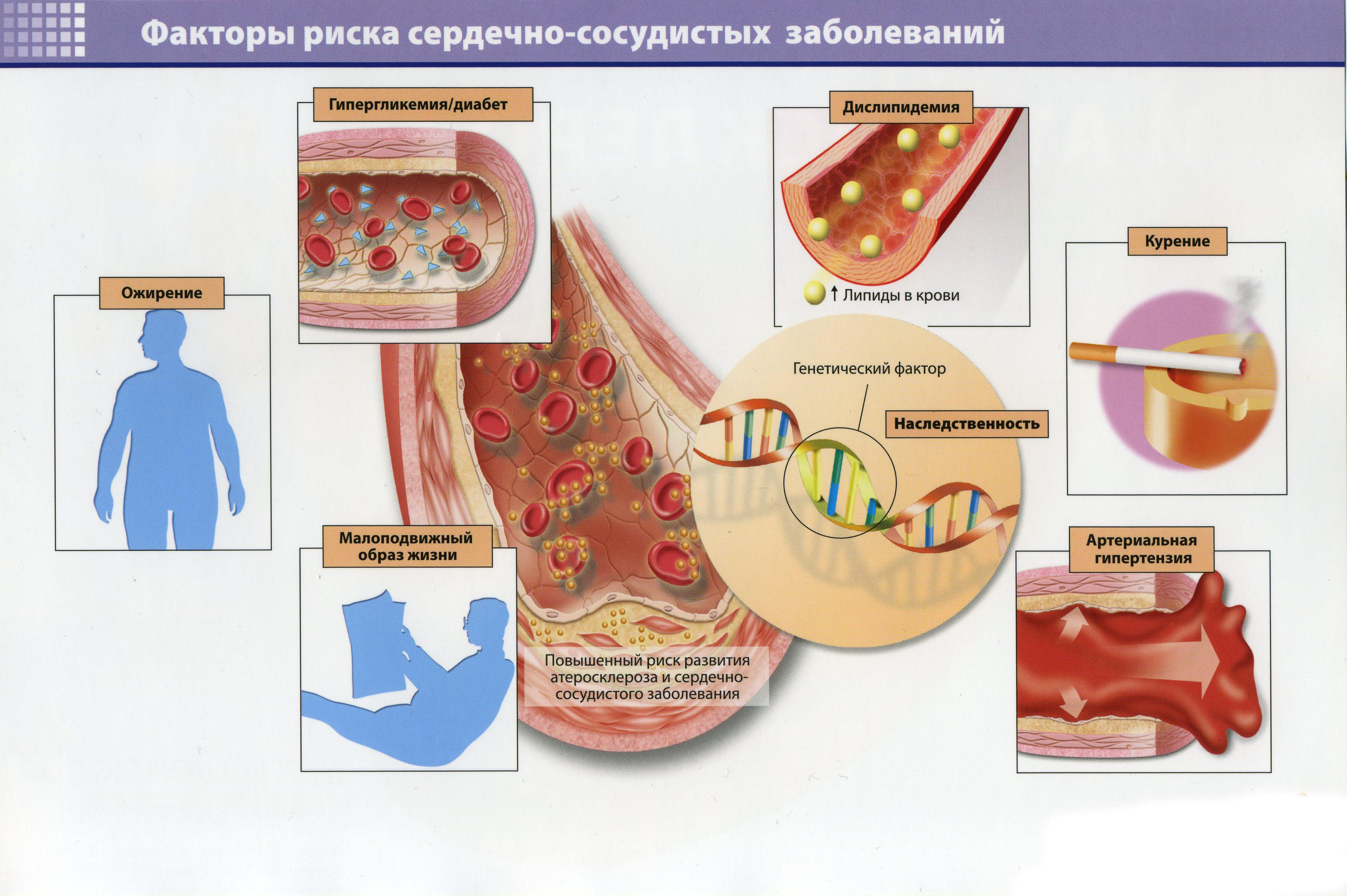 Факторы риска сердечно-сосудистых заболеваний