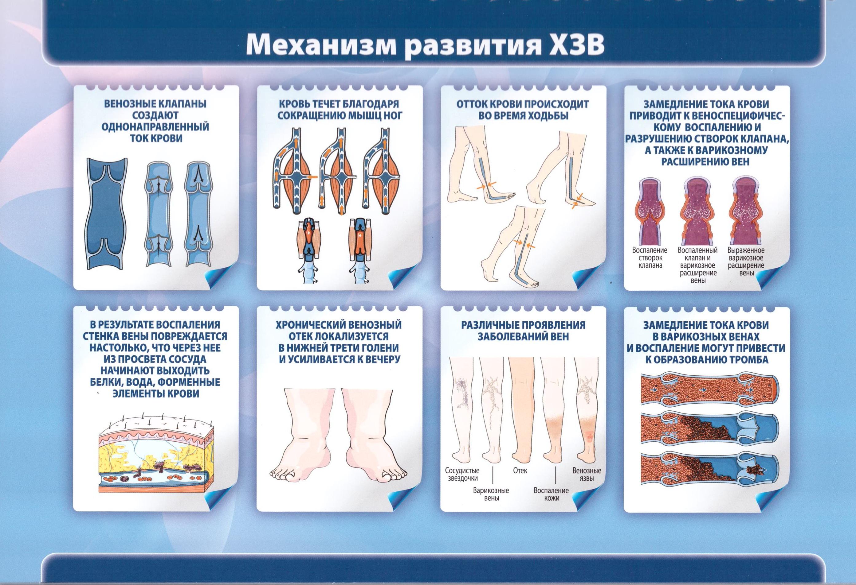 ВРВ_Развитие болезни