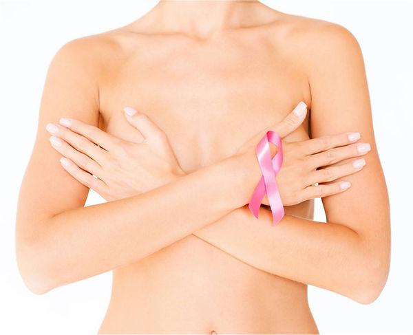 reconstruccion mamaria. cancer de mama, mastectomia
