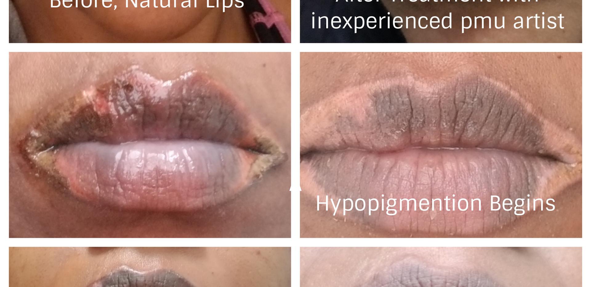 PMU Lip Correction
