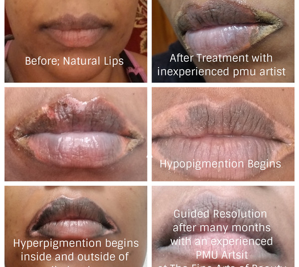 PMU Lip Correction