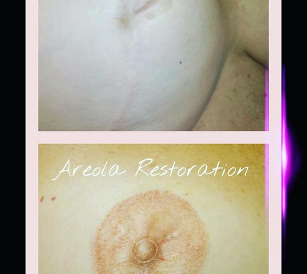 3D Areola Scar Restoration