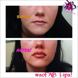 Lip and Fill