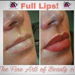 Before After Lips